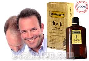 Thuốc kích thích mọc tóc Kaminomoto hàng chính hãng Nhật Bản ngăn ngừa rụng tóc và kích thích mọc tóc trở lại an toàn, hiệu quả gấp 3 lần so với các thuốc thông thường. Giảm giá sốc còn 249.000đ.