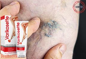 Varikosette là một sản phẩm có xuất xứ từ Nga, điều trị suy giãn tĩnh mạch tốt mà còn là giải pháp tốt giúp cải thiện làn da bị ảnh hưởng bởi suy giãn tĩnh mạch. Chỉ với giá 300.000đ so với giá gốc 450.000đ.