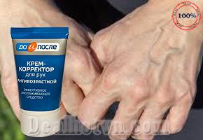 Kem chống lão hóa trị nhăn da tay Twinstec KPEM Koppektop 100ml chính hãng (Nga). Giá 130.000đ